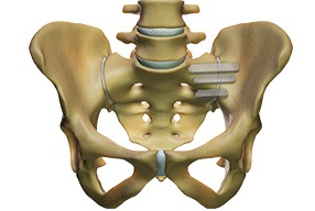 hip+pain+after+si+joint+fusion
